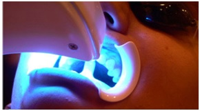 Blanqueamiento dental Led: